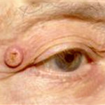 кератоакантома у человека на глазу