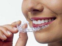 Быстрое исправление прикуса – это сияющая улыбка навсегда. зубы, улыбка, трейнер