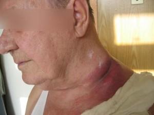 Диффузная В-крупноклеточная лимфома