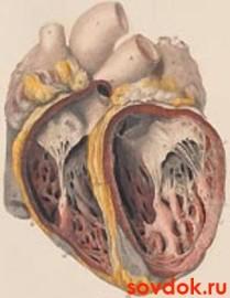 Сердце при инфекционном эндокардите