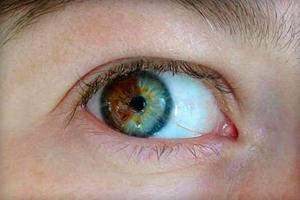 Почему у людей разный цвет глаз и что это значит?