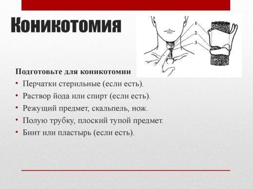 коникотомия