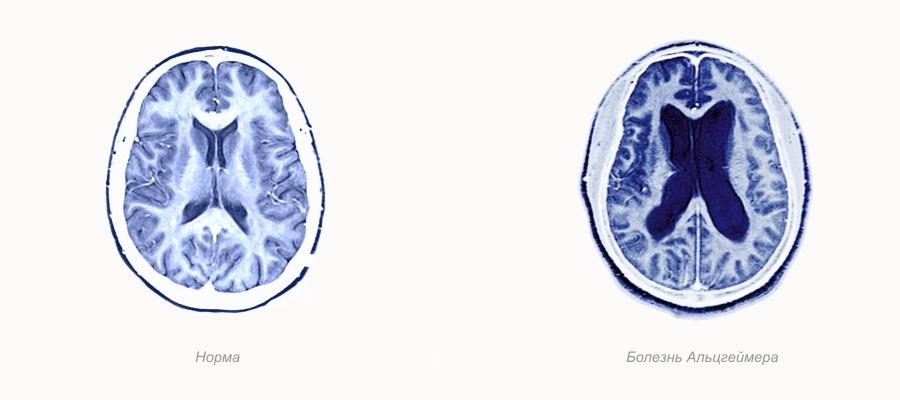 Болезнь Альцгеймера – неизлечимое дегенеративное поражение центральной нервной системы, при котором постепенно ухудшаются и теряются память, речь, логика, наблюдается расстройство интеллекта.
