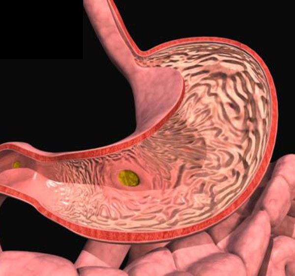 Боли хронический гастродуоденит