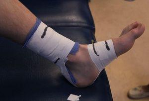 Розрив ахіллового сухожилля: симптоми, лікування