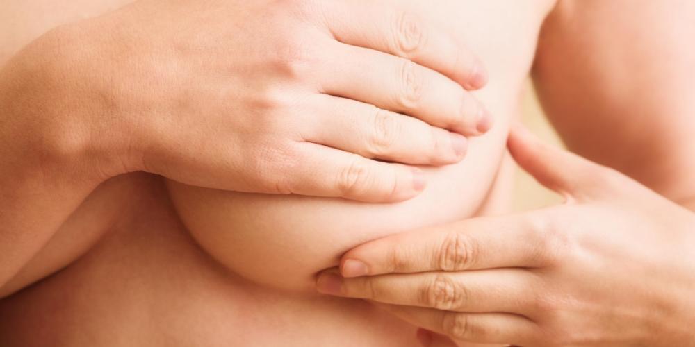 Липома молочной железы – это доброкачественное новообразование, состоящее из капсулы и жировой ткани.