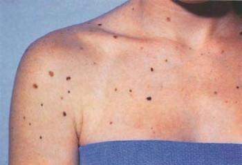 Диспластический невус на груди и плечах