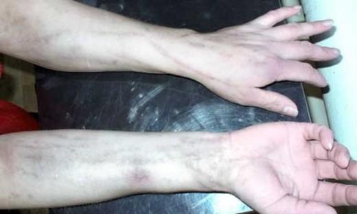 Руки в язвах от наркотиков