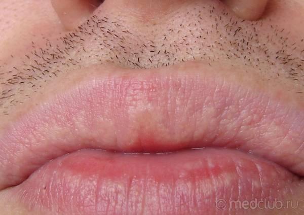 Levre herpes dating