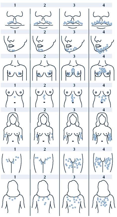 Гирсутизм у женщин