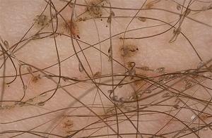 Лобковый педикулез фото 3