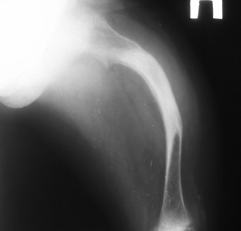 Несовершенный остеогенез фото 4
