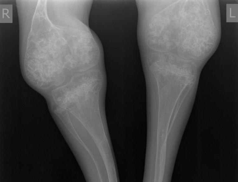 Несовершенный остеогенез фото 3