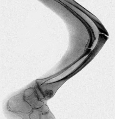 Несовершенный остеогенез фото 0