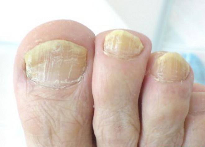 Лечение грибка на ногтях пальцев ног в домашних условиях 522