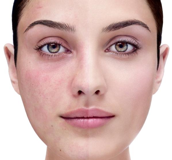 359 1 Как использовать аскорутин при куперозе