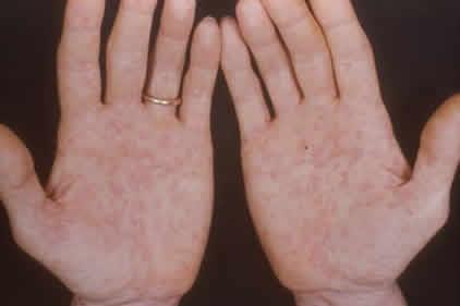 Нейросифилис фото 3