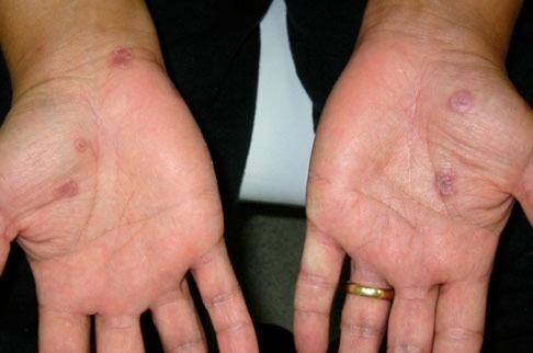 Нейросифилис фото 2