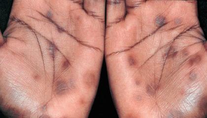 Нейросифилис фото 1