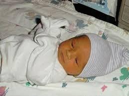 Желтуха у новорожденных фото 1