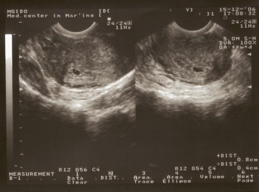 Фото узи плода на 4 неделю беременности