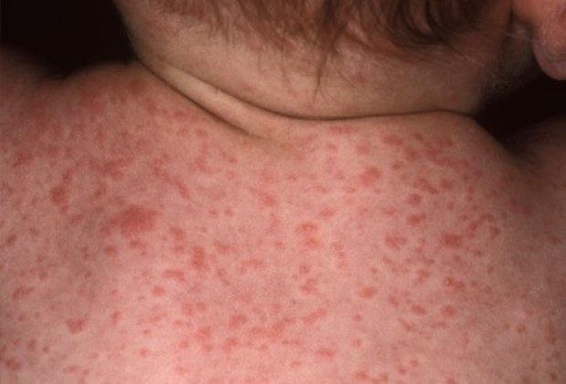 Цитомегаловирусная инфекция фото 3