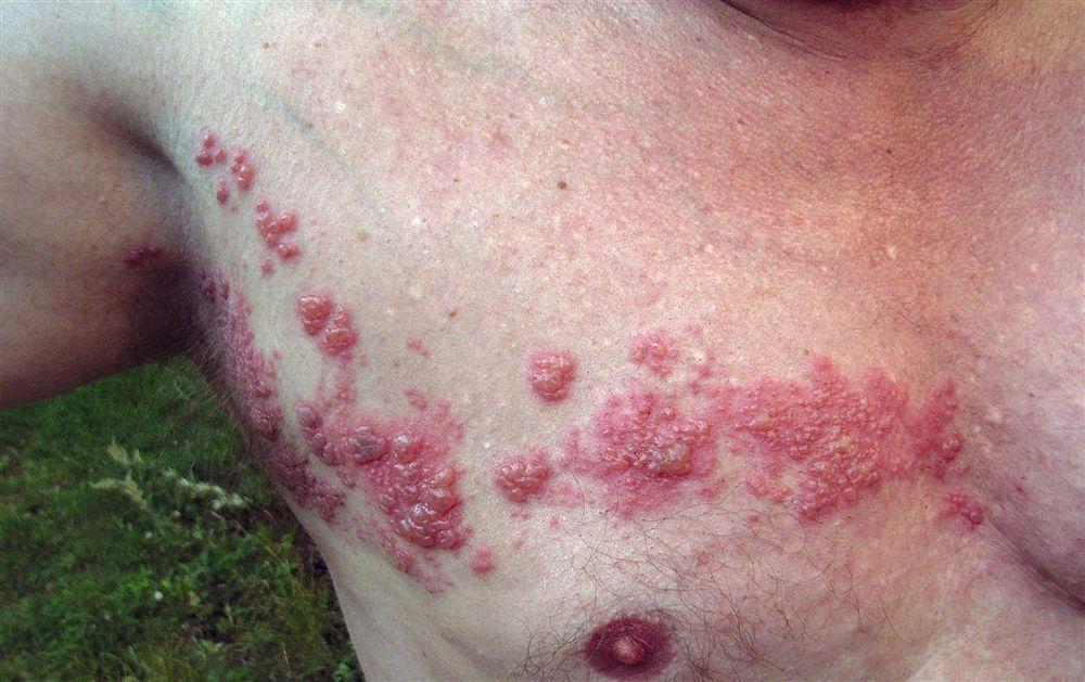 Цитомегаловирусная инфекция фото 1