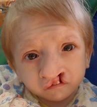 Синдром Патау фото 5