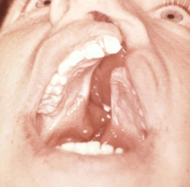 Синдром Патау фото 0
