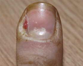Чем намазать палец при нарыве