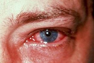 Аденовирус фото 1