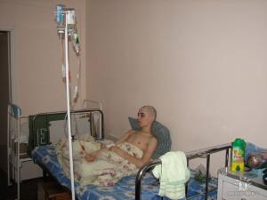 Облысение - следствие химиотерапии