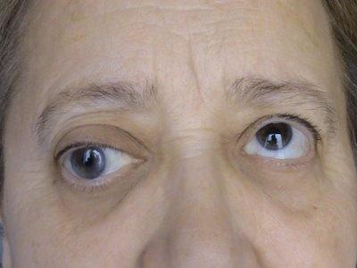 Двоение в глазах при мигрени