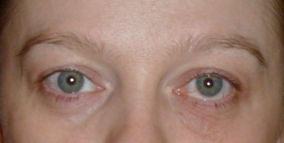 Если двойное изображение видится постоянно, при этом присутствуют другие патологические симптомы — головные боли, головокружение, ухудшение общего самочувствия, визит к врачу откладывать не стоит.