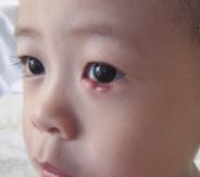 Ячмень у ребенка фото 1