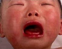 Болезнь Кавасаки фото 1