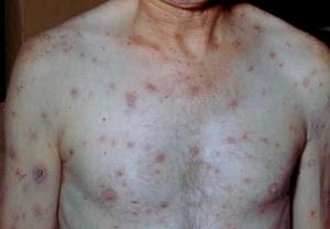 Первичный сифилис фото 1