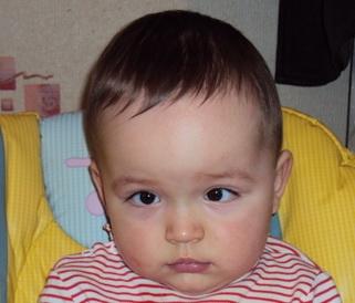 Гидроцефалия у детей фото 3