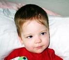 Гидроцефалия у детей фото 0