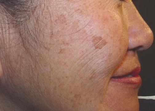 Возрастные пигментные пятна – сигнал о неполадках в организме