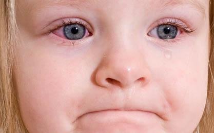 Конъюнктивит у детей фото 2