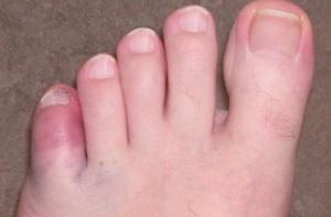 Переломы костей стопы и пальцев у детей фото 2