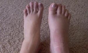 Переломы костей стопы и пальцев у детей фото 1