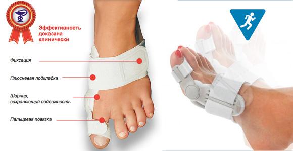 79 1 Лечение и причины косточки на ногах