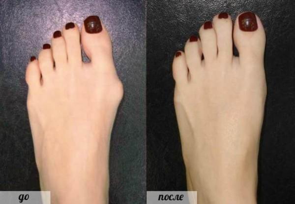 79 2 600x414 Лечение и причины косточки на ногах