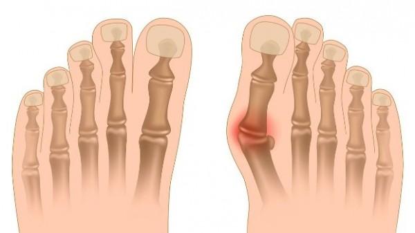 79 600x337 Лечение и причины косточки на ногах
