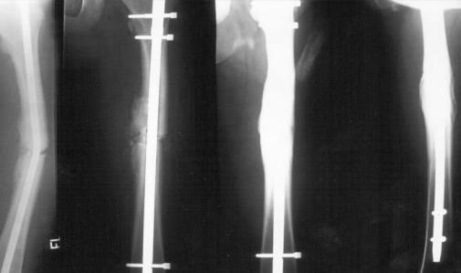 8 2 Причины возникновения костной мозоли и способы ее лечения