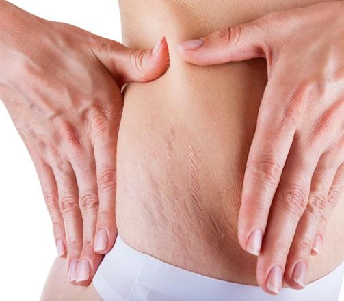 92 Беременность без растяжек: выбор подходящего геля