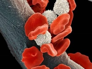Волосатоклеточный лейкоз