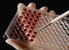 Расшифровка анализа крови антитела